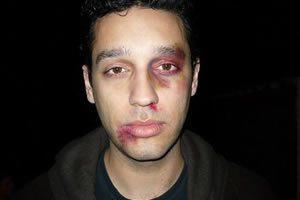 Man Abused