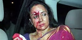 Bollywood's Hema Malini injured in Fatal Accident