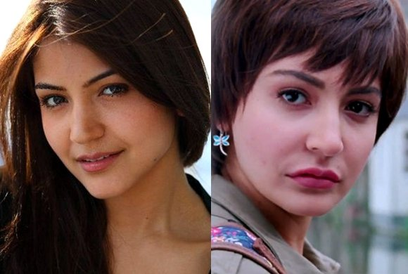 bollywood stars before and after cosmetic surgery desiblitz
