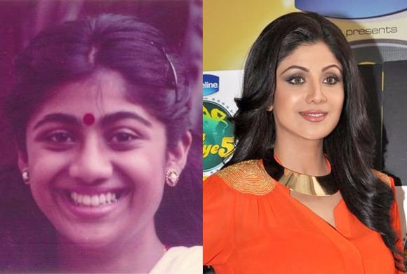 Bollywood Stars Before and After Cosmetic Surgery