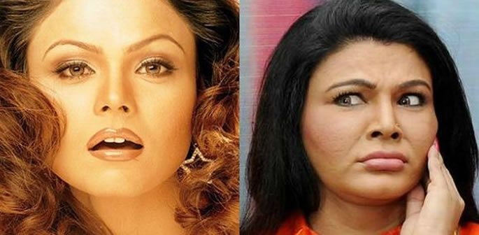 ollywood Stars Before and After Cosmetic Surgery