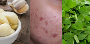 10 Amazing Remedies for Acne Skin Problems