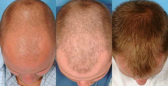 Hair transplant before and after men