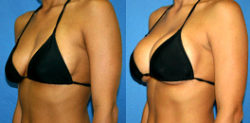 Popular Cosmetic Surgery for British Women