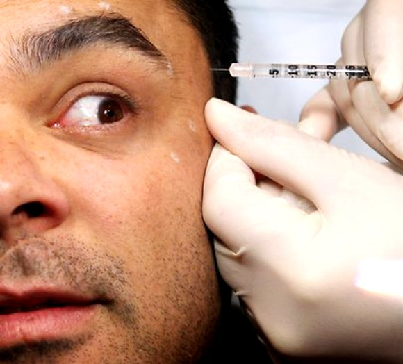 Popular Cosmetic Surgery For British Men Desiblitz