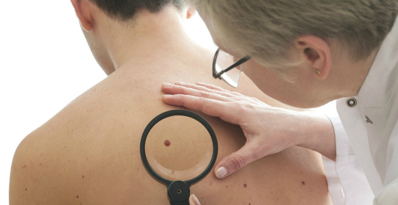 Skin Cancer Test routine