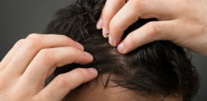 Popular Hair Loss Treatments for Men