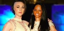 Acid Attack Survivors walk at London Fashion Week