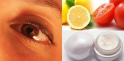 6 Ways to Lighten Dark Circles around Eyes