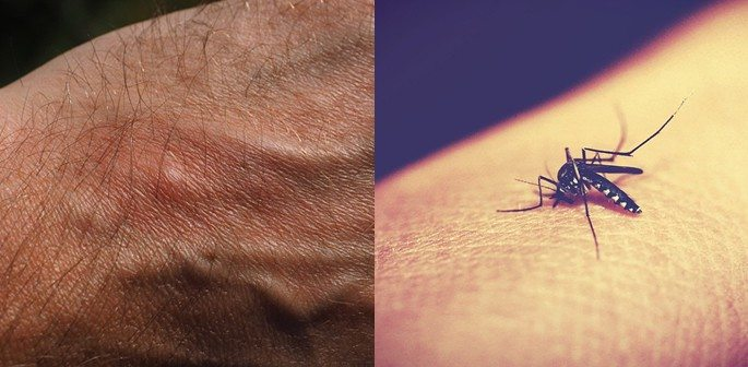 10 Facts about Malaria you Need to Know