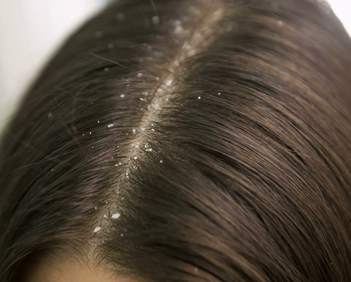 Why Henna Is So Good for Hair - dandruff