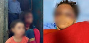 Indian Boy gouges Sister's Eyes Out for Buying Rs 100 Dress f