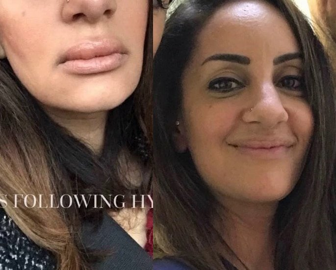Dentist left with 'rock hard blue lumps' after £300 Lip FIller Jabs - fix