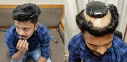 Indian Man tried to Smuggle 1kg Gold Under a Wig