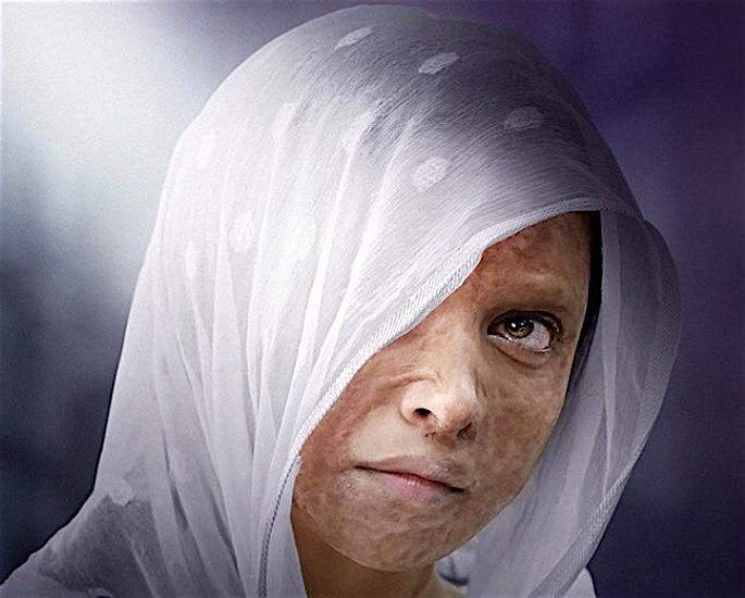 एसिड अटैक सर्वाइवर केटी प्राइस ने दीपिका की 'छपाक' की प्रशंसा की - डीपिका