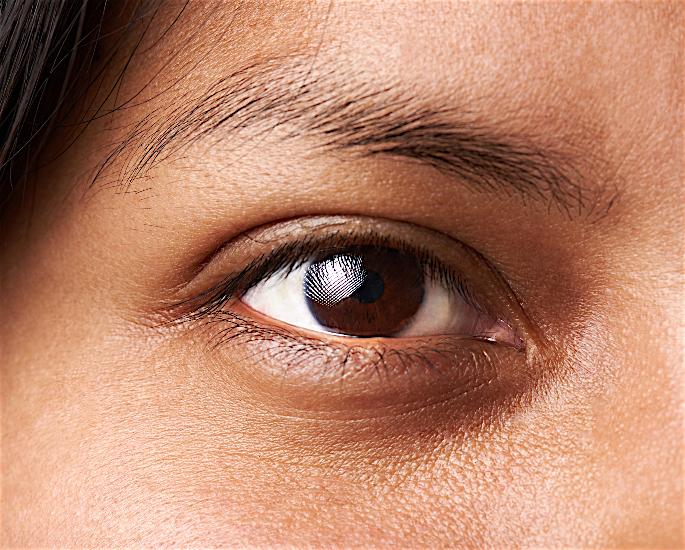 How to Get Rid of Dark Under-Eye Circles - peels