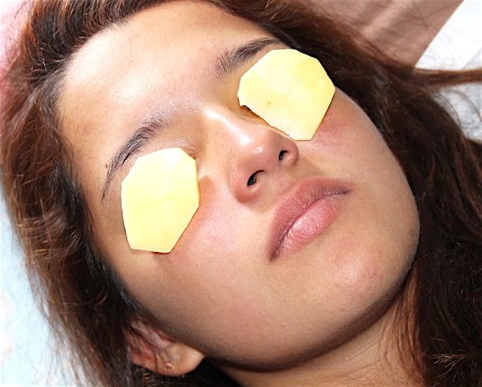 How to Get Rid of Dark Under-Eye Circles - potato