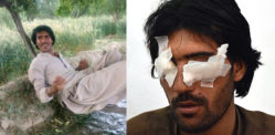Pakistani Man Blinded by Father & Brothers in 'Honour Crime'