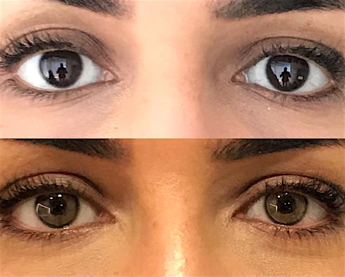 Is Changing the Colour of Your Eyes Possible? - change
