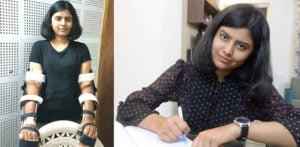 Indian Woman's Transplanted Hands now Match Her Skin f