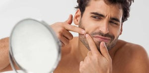 Tips for Clearing Acne in Desi Men f