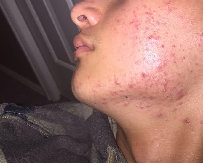 Tips for Clearing Acne in Desi Men - treat