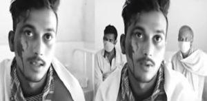 भारतीय प्रेमिका ने दूसरी शादी करने के लिए पूर्व प्रेमी पर तेजाब फेंक दिया
