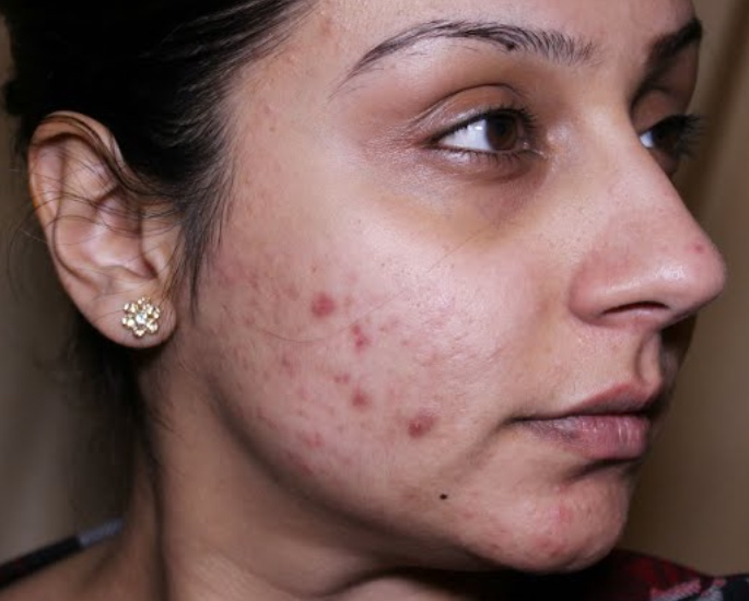 10 Beauty Issues faced by British Asian Women - acne