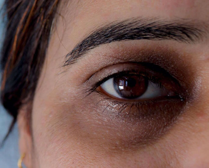 10 Beauty Issues faced by British Asian Women - dark eyes