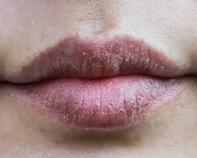 10 Beauty Issues faced by British Asian Women - dry lips