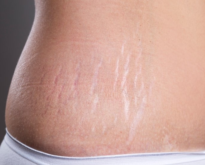 10 Beauty Issues faced by British Asian Women - stretch marks