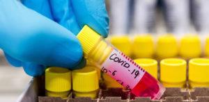 Pakistan to Launch Covid-19 Vaccine Drive f