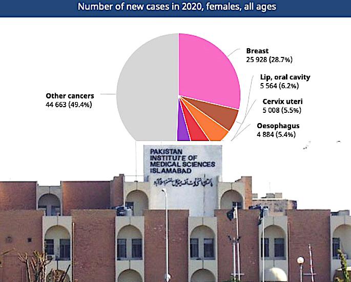 क्यों पाकिस्तानी महिलाएं स्तन कैंसर का इलाज करने से हिचकिचाती हैं - IA 2